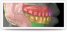 kieferorthopaedische-chirurgische
